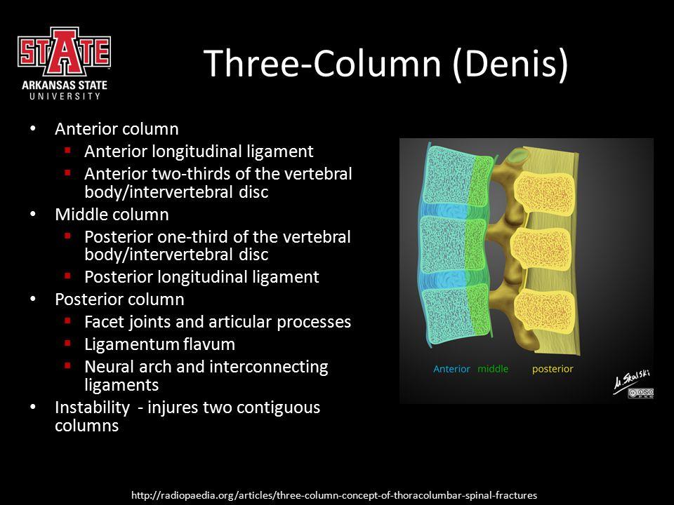 Three-Column (Denis) Anterior column  Anterior longitudinal ligament  Anterior two-thirds of the vertebral body/intervertebral disc Middle column 