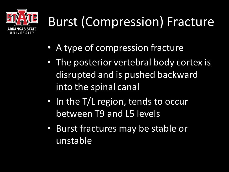 Burst (Compression) Fracture A type of compression fracture The posterior vertebral body cortex is disrupted and is pushed backward into the spinal ca
