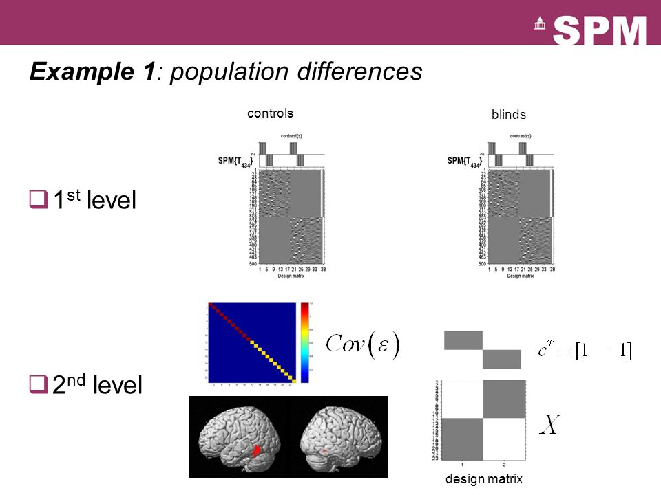 Example 1: population differences  1 st level  2 nd level controls blinds design matrix