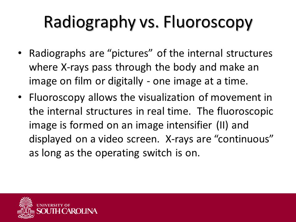 """Radiography vs. Fluoroscopy Radiographs are """"pictures"""" of the internal structures where X-rays pass through the body and make an image on film or digi"""