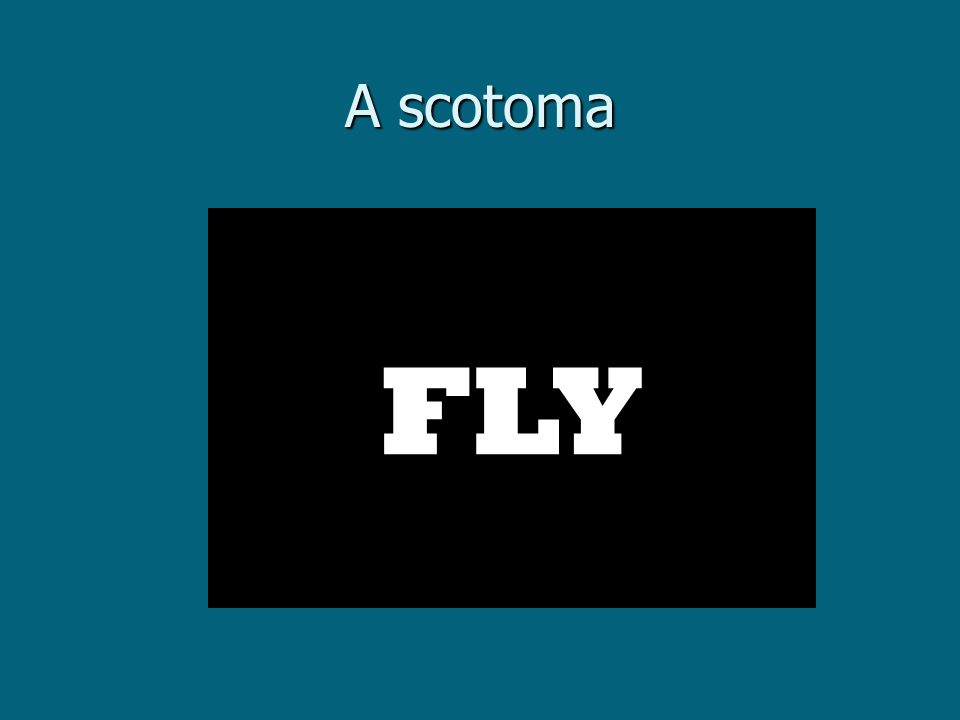 FLY A scotoma