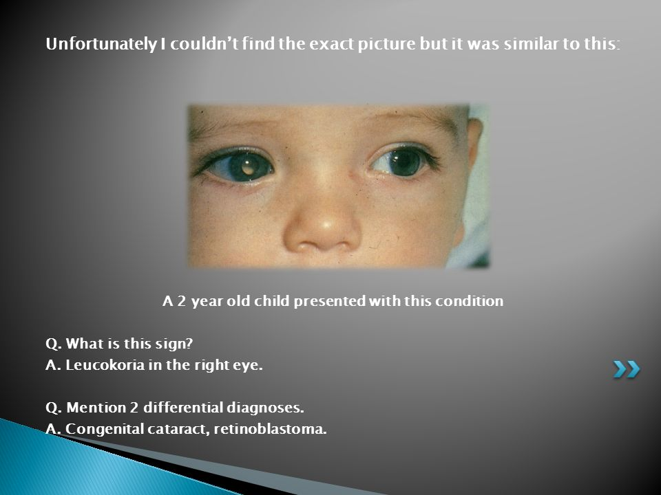 Unfortunately I couldn't find the exact picture but it was similar to this: A 2 year old child presented with this condition Q. What is this sign? A.