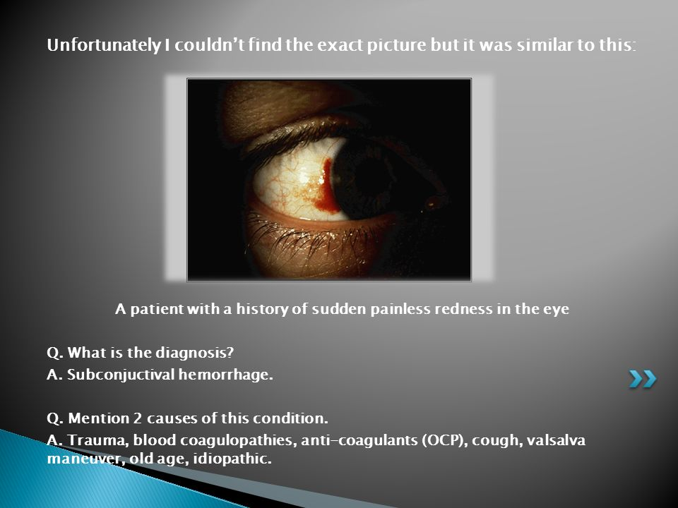 Unfortunately I couldn't find the exact picture but it was similar to this: A patient with a history of sudden painless redness in the eye Q. What is