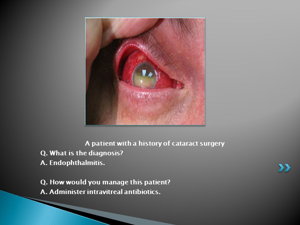 A patient with a history of cataract surgery Q. What is the diagnosis? A. Endophthalmitis. Q. How would you manage this patient? A. Administer intravi