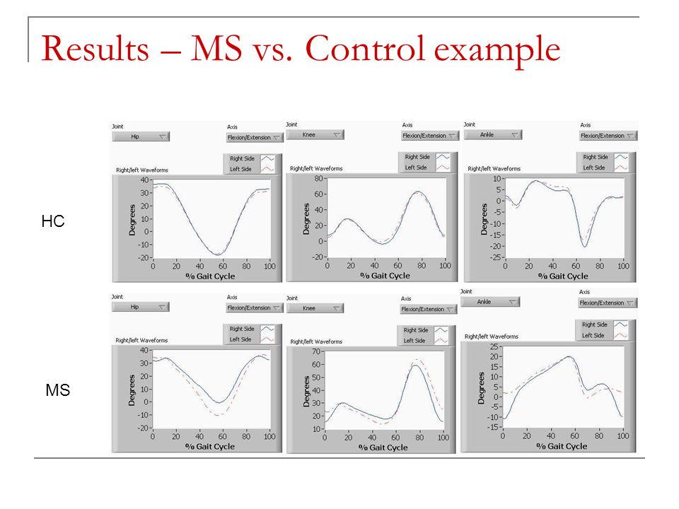 Results – MS vs. Control example HC MS