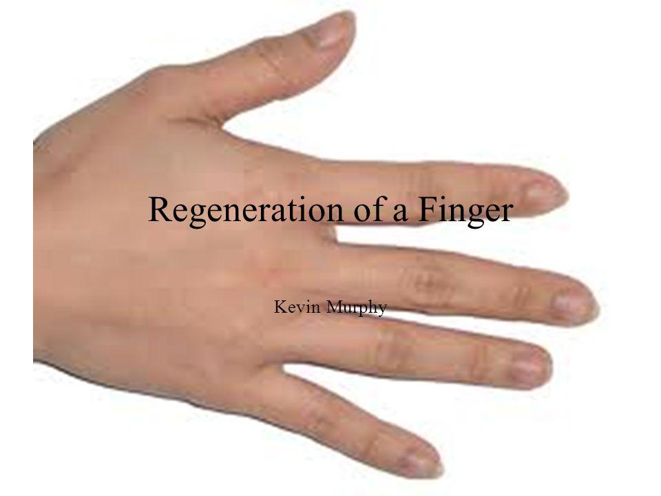Regeneration of a Finger Kevin Murphy