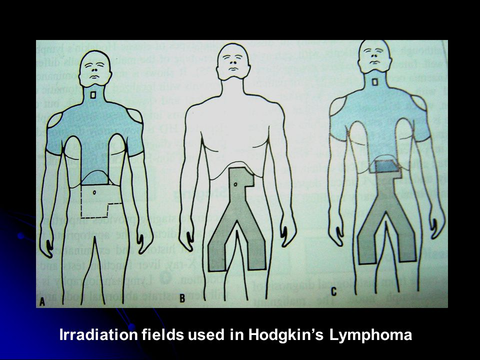 Irradiation fields used in Hodgkin's Lymphoma