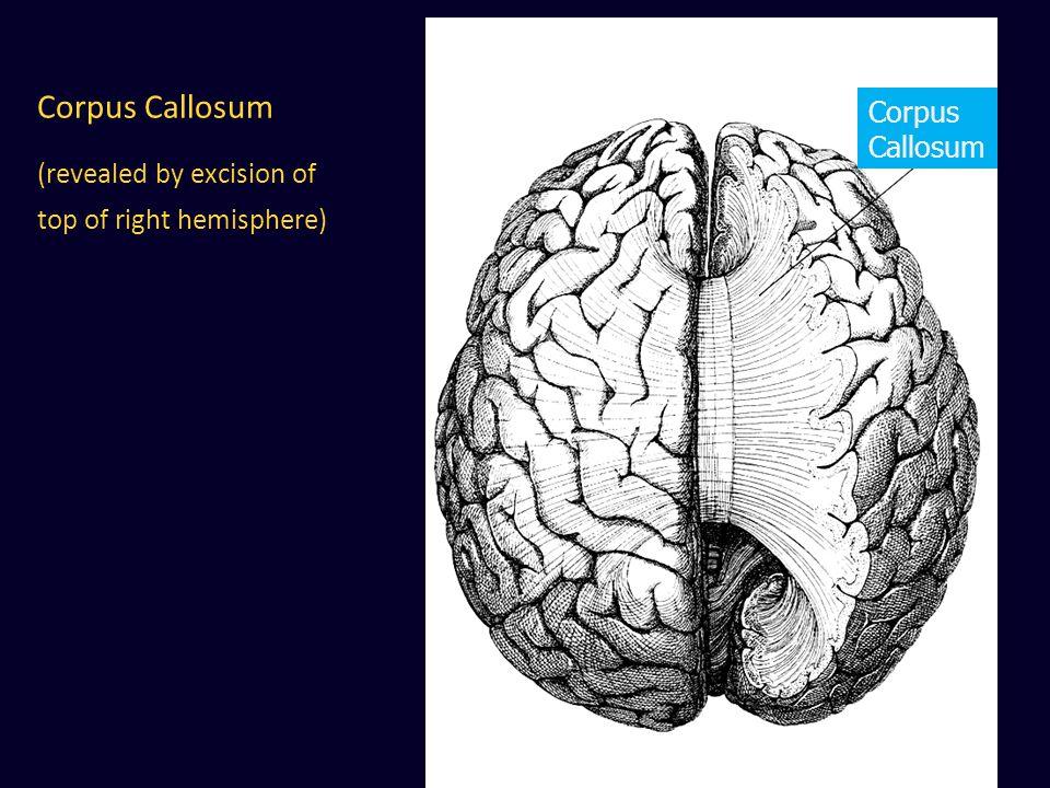 Corpus Callosum (revealed by excision of top of right hemisphere) Corpus Callosum