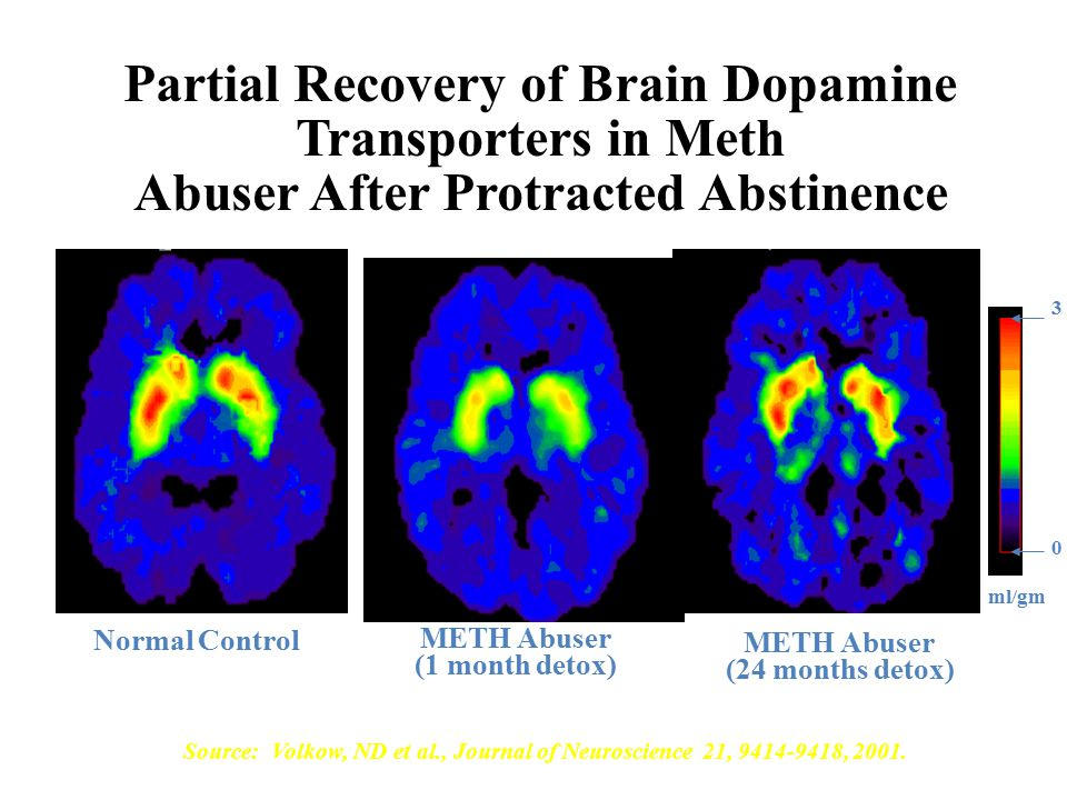 Partial Recovery of Brain Dopamine Transporters in Meth Abuser After Protracted Abstinence Normal Control METH Abuser (1 month detox) METH Abuser (24