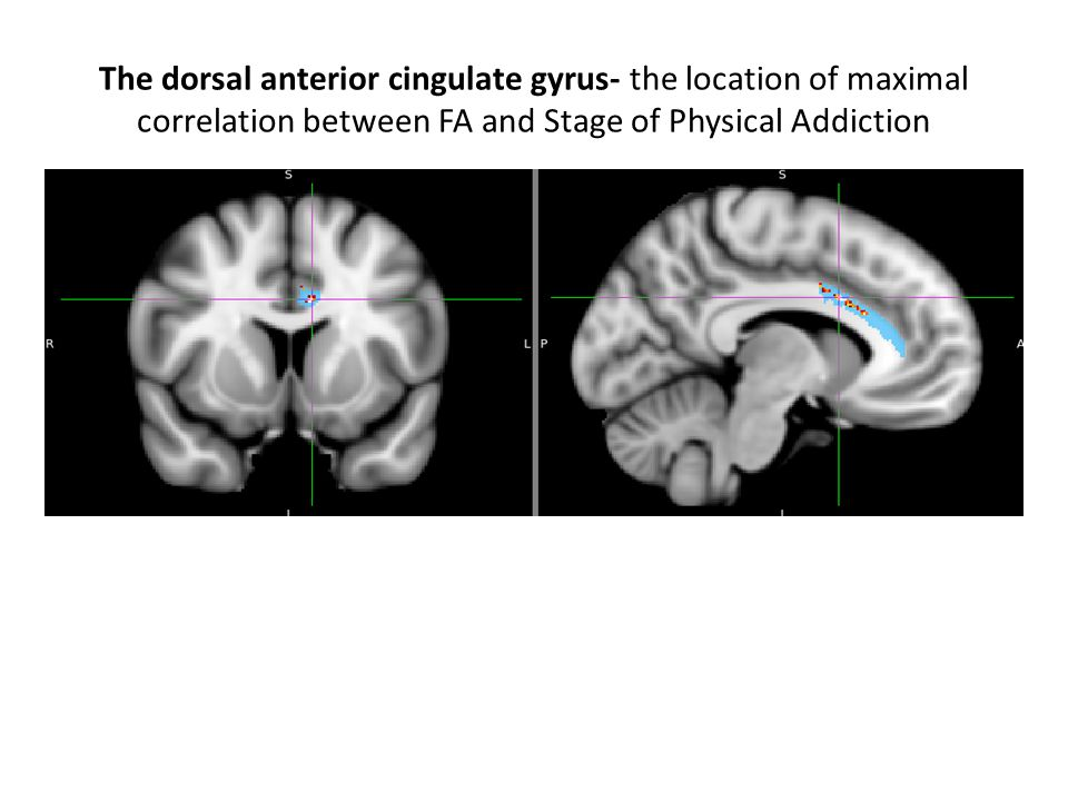 Structural connectivity increases between the dorsal anterior cingulate and prefrontal cortex with advancing Stage of Addiction.