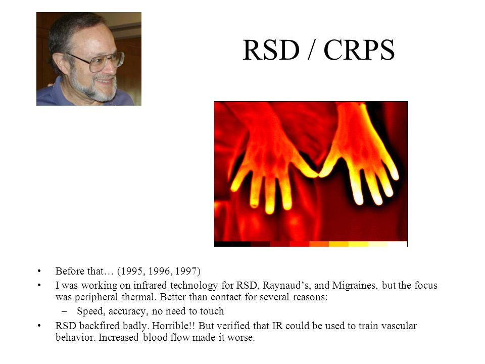 RSD / CRPS Before that… (1995, 1996, 1997) I was working on infrared technology for RSD, Raynaud's, and Migraines, but the focus was peripheral thermal.