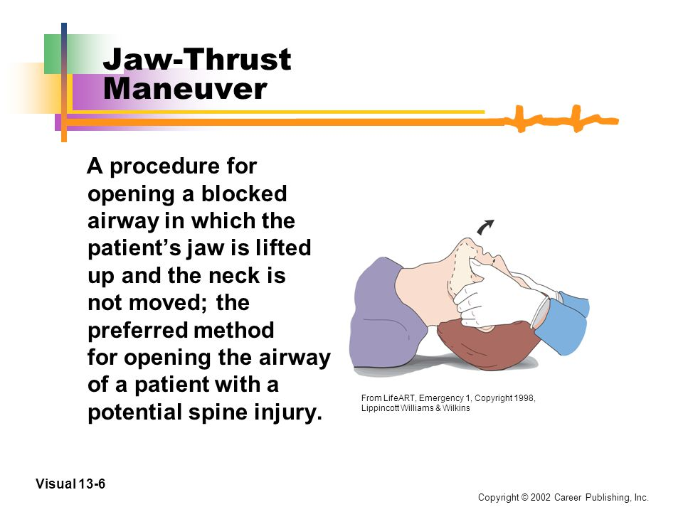 Copyright © 2002 Career Publishing, Inc. Visual 13-5 Head-Tilt/Chin-Lift Maneuver A procedure for opening a blocked airway in which the patient's head