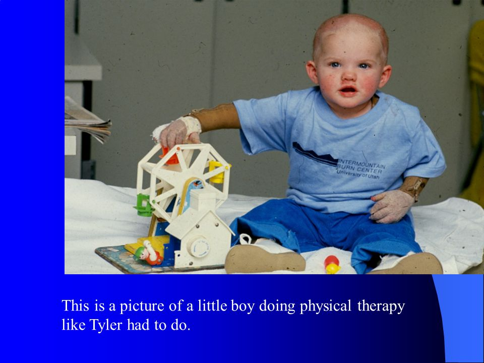 This is a picture of a little boy doing physical therapy like Tyler had to do.