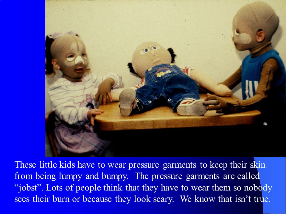 These little kids have to wear pressure garments to keep their skin from being lumpy and bumpy.