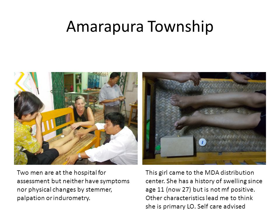 Amarapura Township Two men are at the hospital for assessment but neither have symptoms nor physical changes by stemmer, palpation or indurometry.