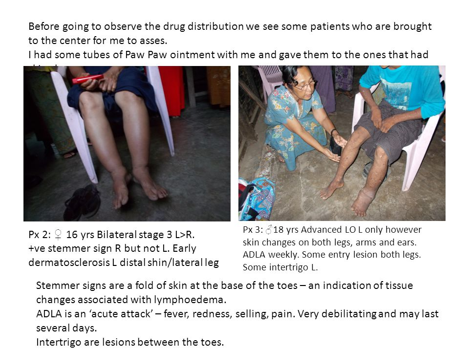 Before going to observe the drug distribution we see some patients who are brought to the center for me to asses.