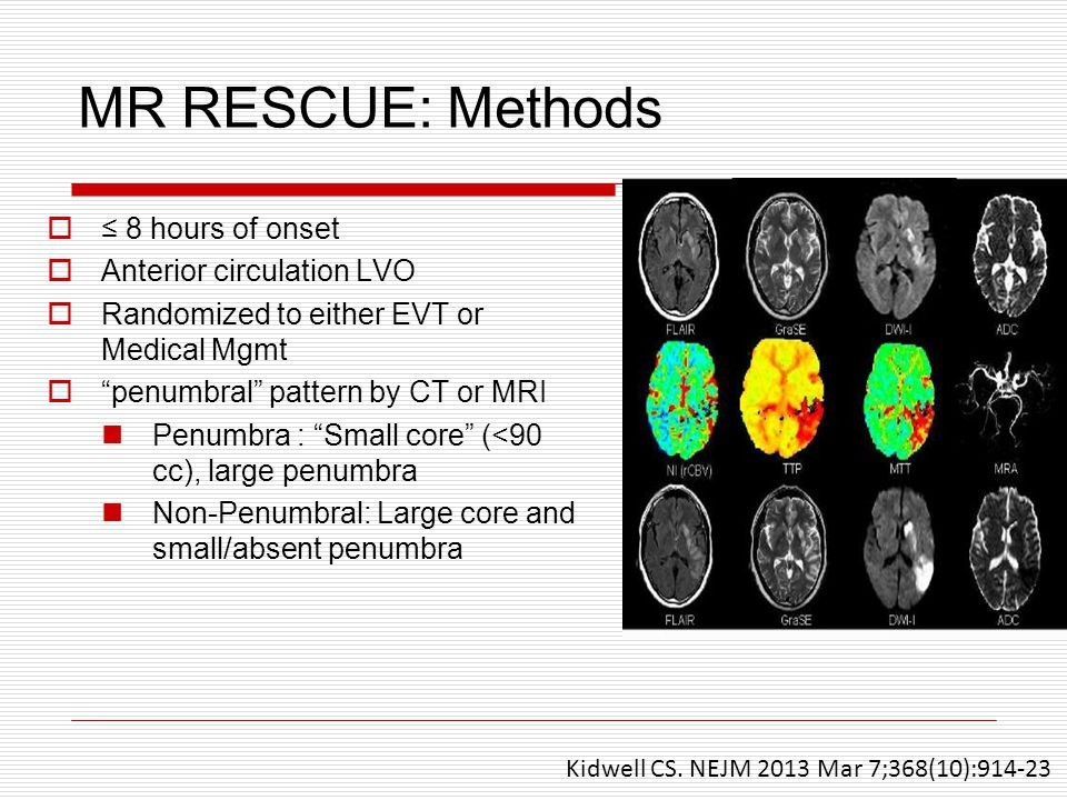 MR RESCUE: Methods  ≤ 8 hours of onset  Anterior circulation LVO  Randomized to either EVT or Medical Mgmt  penumbral pattern by CT or MRI Penumbra : Small core (<90 cc), large penumbra Non-Penumbral: Large core and small/absent penumbra Kidwell CS.