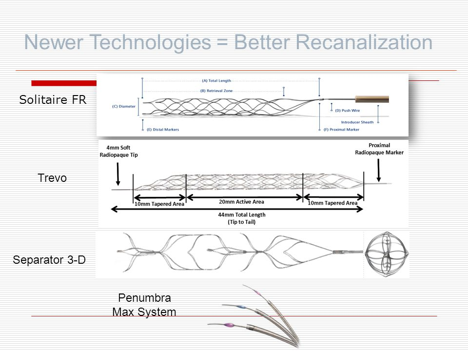 Newer Technologies = Better Recanalization Solitaire FR Trevo Separator 3-D Penumbra Max System