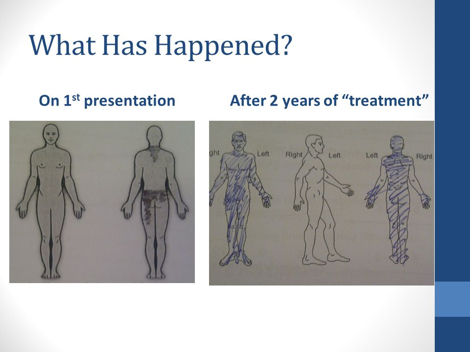 What Has Happened On 1 st presentationAfter 2 years of treatment