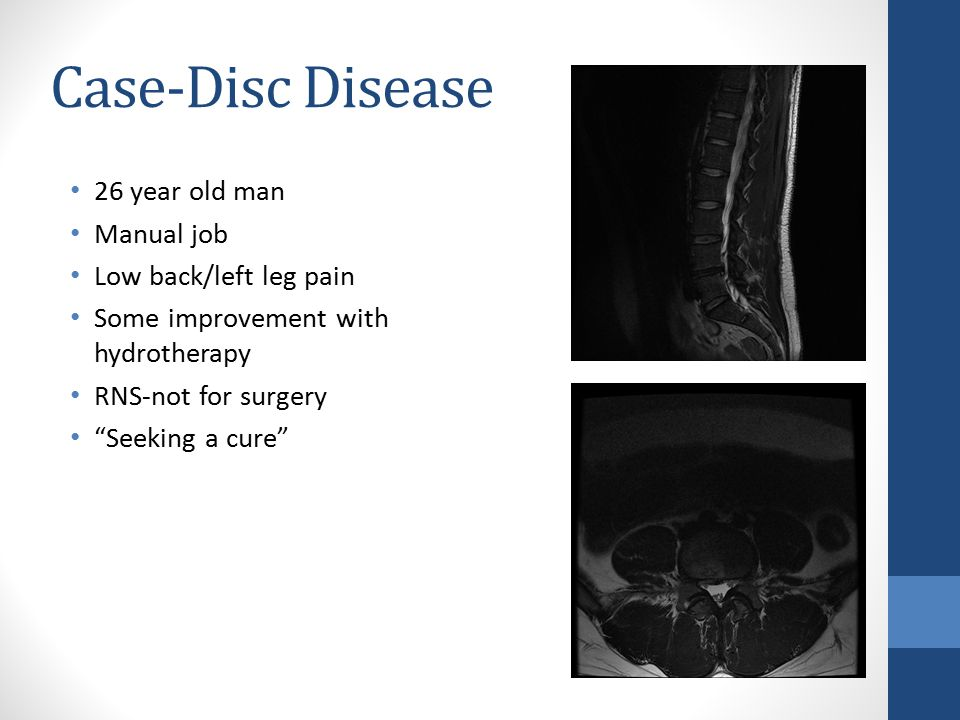 Case-Disc Disease 26 year old man Manual job Low back/left leg pain Some improvement with hydrotherapy RNS-not for surgery Seeking a cure