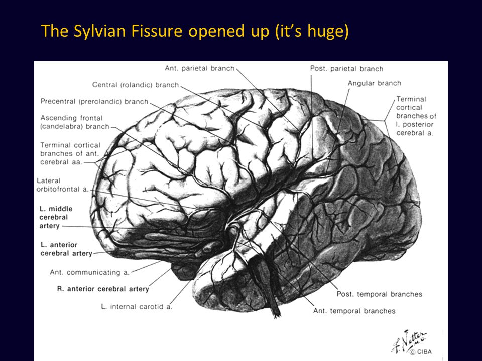 The Sylvian Fissure opened up (it's huge)