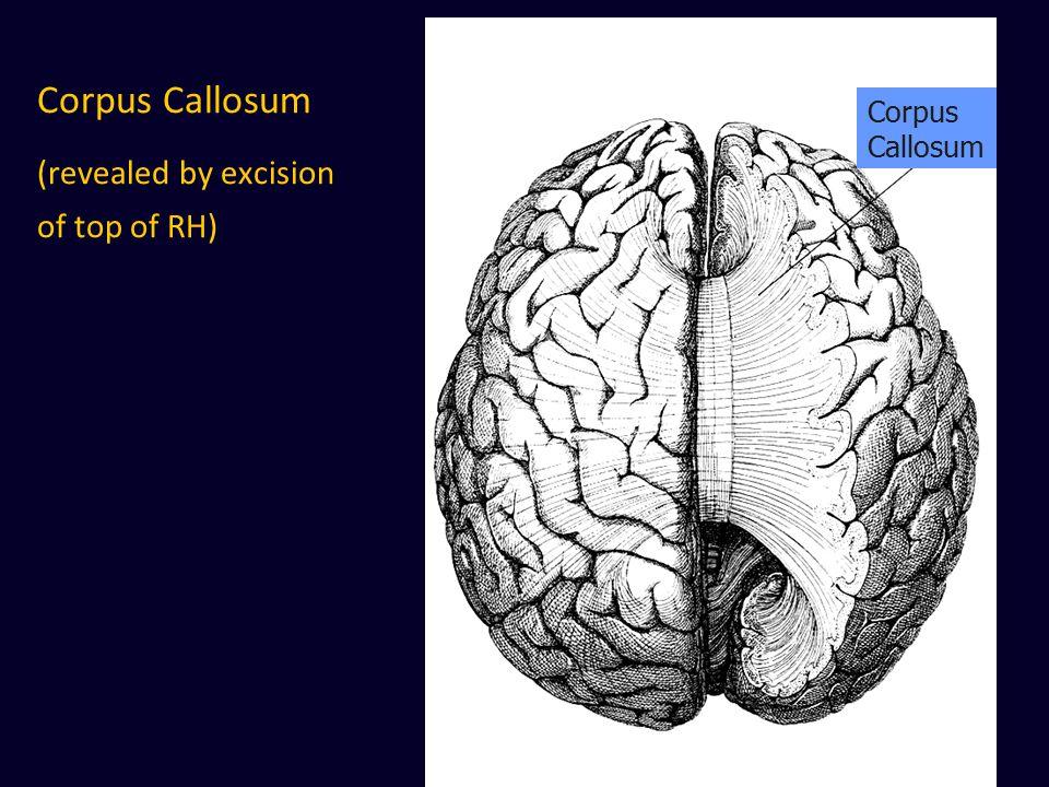 Corpus Callosum (revealed by excision of top of RH) Corpus Callosum