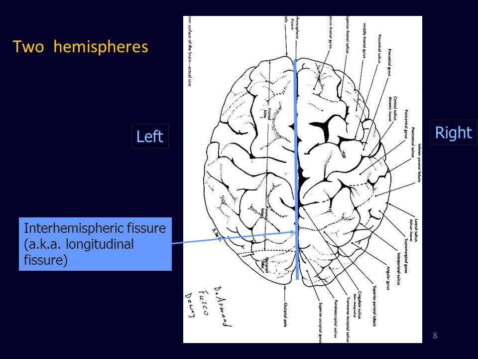 Corpus Callosum Connects Hemispheres Corpus Callosum 9