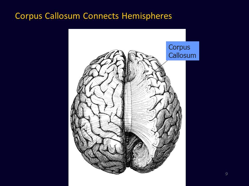 Major Left Hemisphere landmarks Central Sulcus Sylvian fissure 10