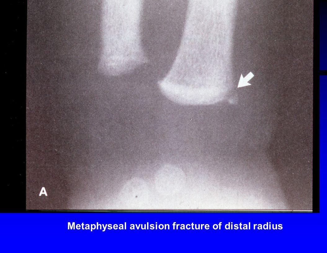Metaphyseal avulsion fracture of distal radius