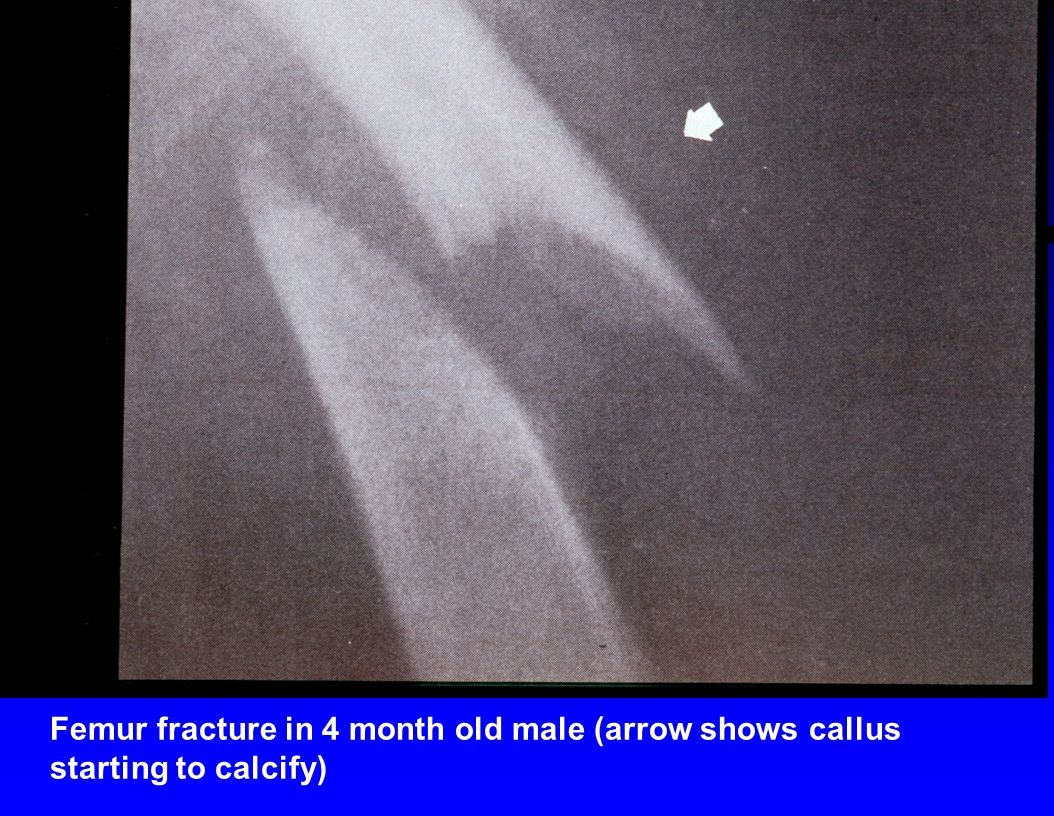 Femur fracture in 4 month old male (arrow shows callus starting to calcify)