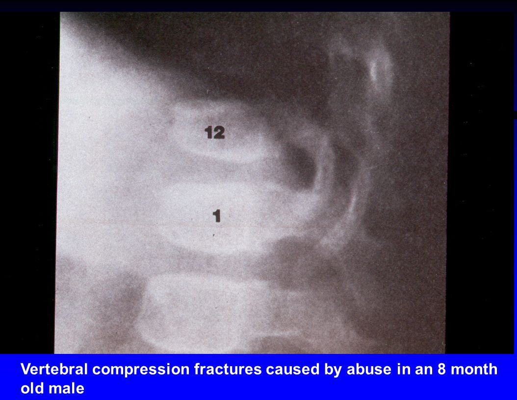 Vertebral compression fractures caused by abuse in an 8 month old male