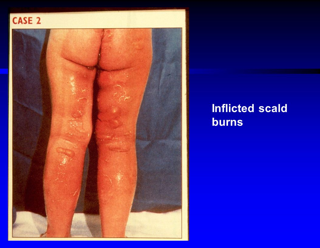 Inflicted scald burns