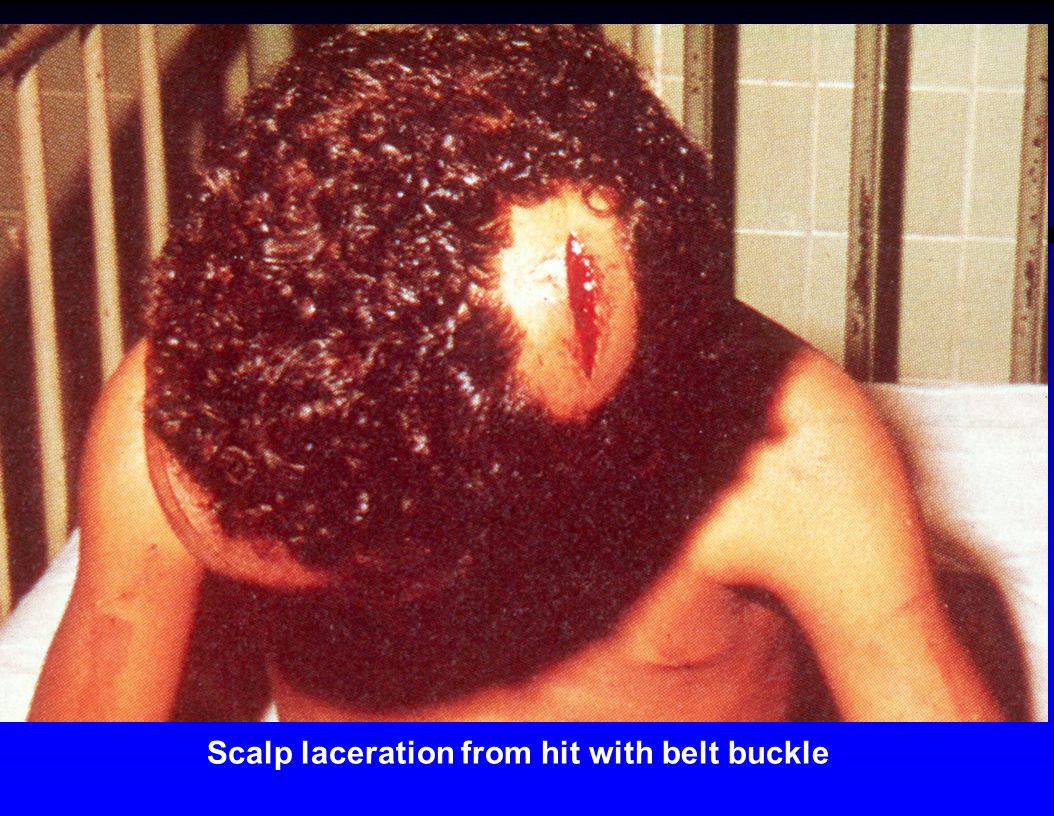 Scalp laceration from hit with belt buckle