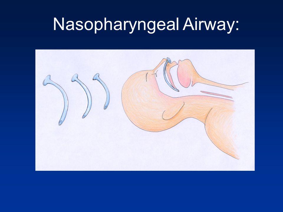 Nasopharyngeal Airway:
