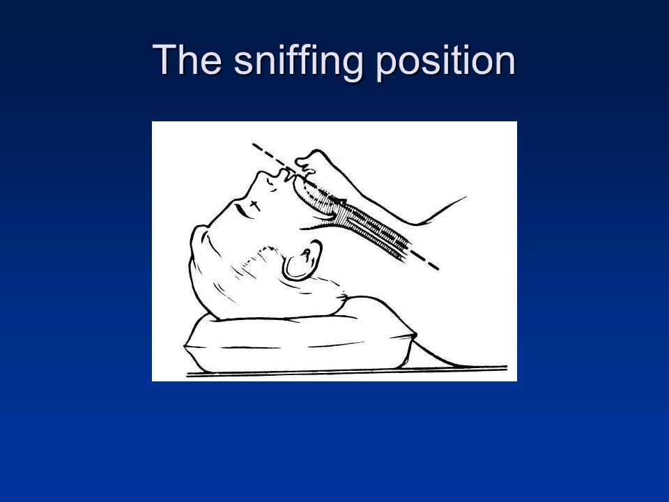 The sniffing position