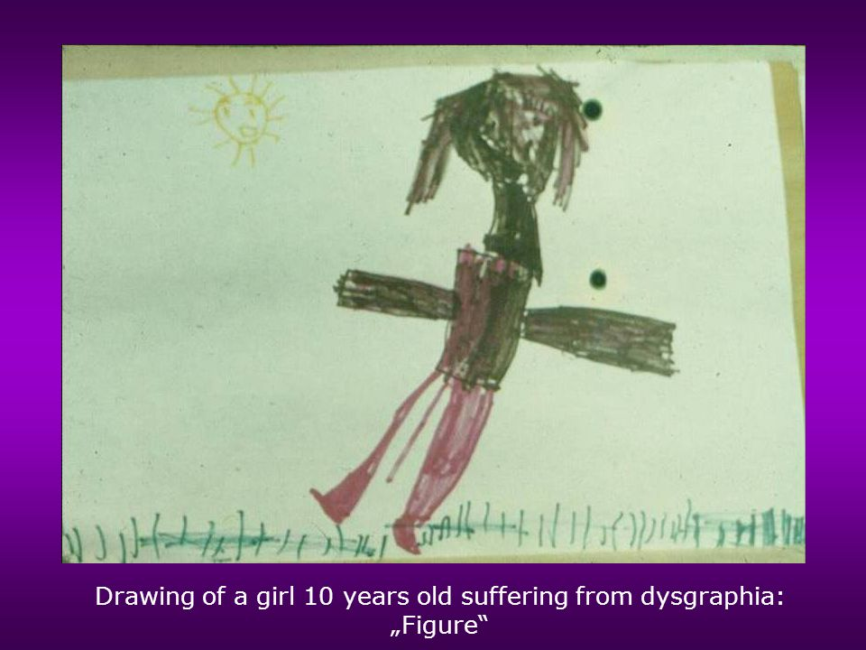 "Drawing of a girl 10 years old suffering from dysgraphia: ""Figure"""