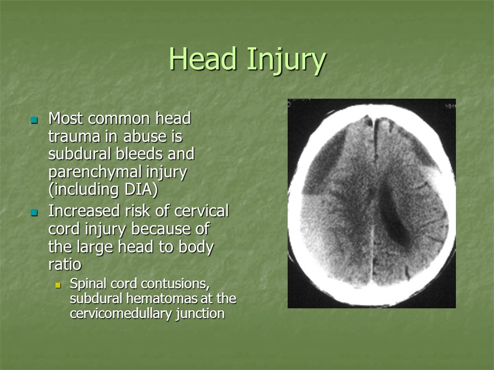 Head Injury Most common head trauma in abuse is subdural bleeds and parenchymal injury (including DIA) Most common head trauma in abuse is subdural bleeds and parenchymal injury (including DIA) Increased risk of cervical cord injury because of the large head to body ratio Increased risk of cervical cord injury because of the large head to body ratio Spinal cord contusions, subdural hematomas at the cervicomedullary junction Spinal cord contusions, subdural hematomas at the cervicomedullary junction