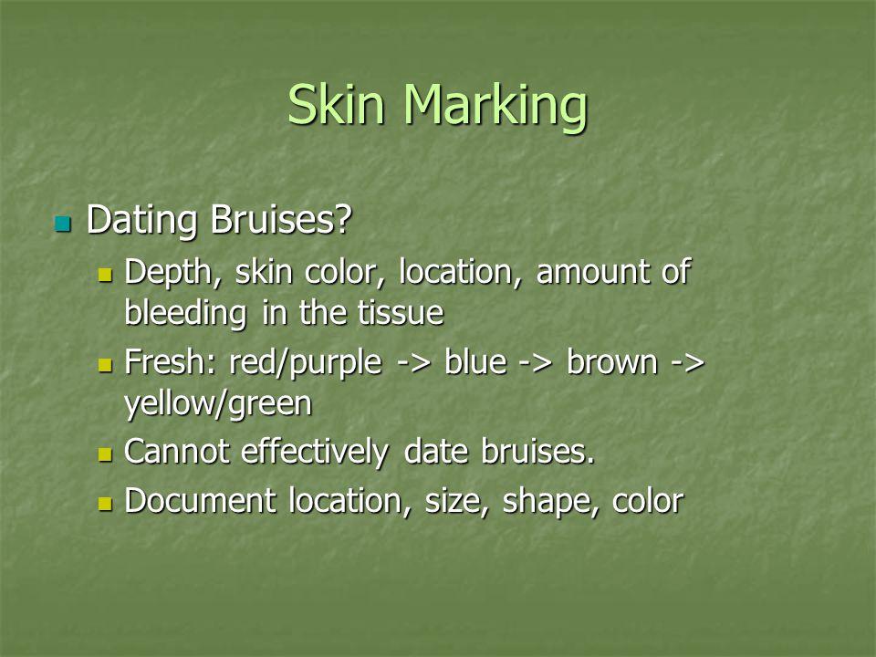 Skin Marking Dating Bruises. Dating Bruises.
