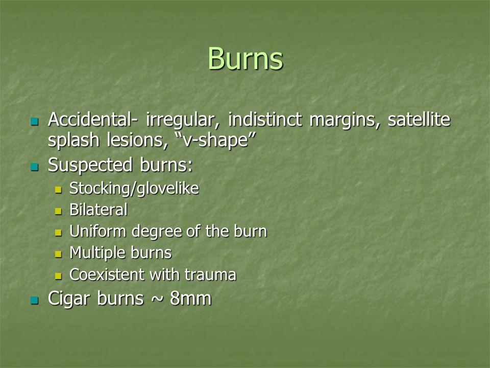 Burns Accidental- irregular, indistinct margins, satellite splash lesions, v-shape Accidental- irregular, indistinct margins, satellite splash lesions, v-shape Suspected burns: Suspected burns: Stocking/glovelike Stocking/glovelike Bilateral Bilateral Uniform degree of the burn Uniform degree of the burn Multiple burns Multiple burns Coexistent with trauma Coexistent with trauma Cigar burns ~ 8mm Cigar burns ~ 8mm