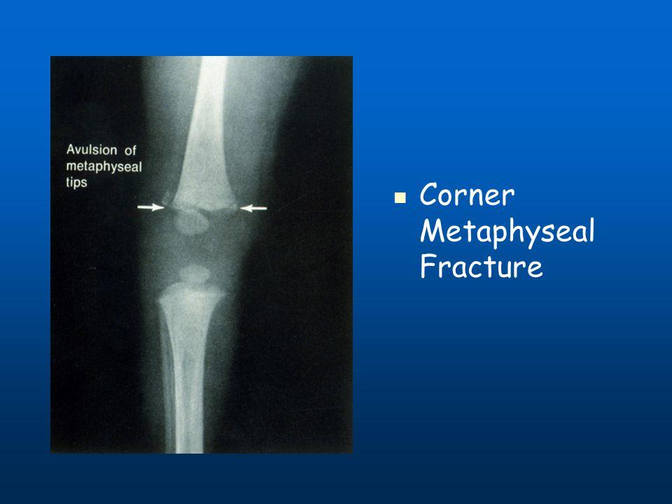Corner Metaphyseal Fracture