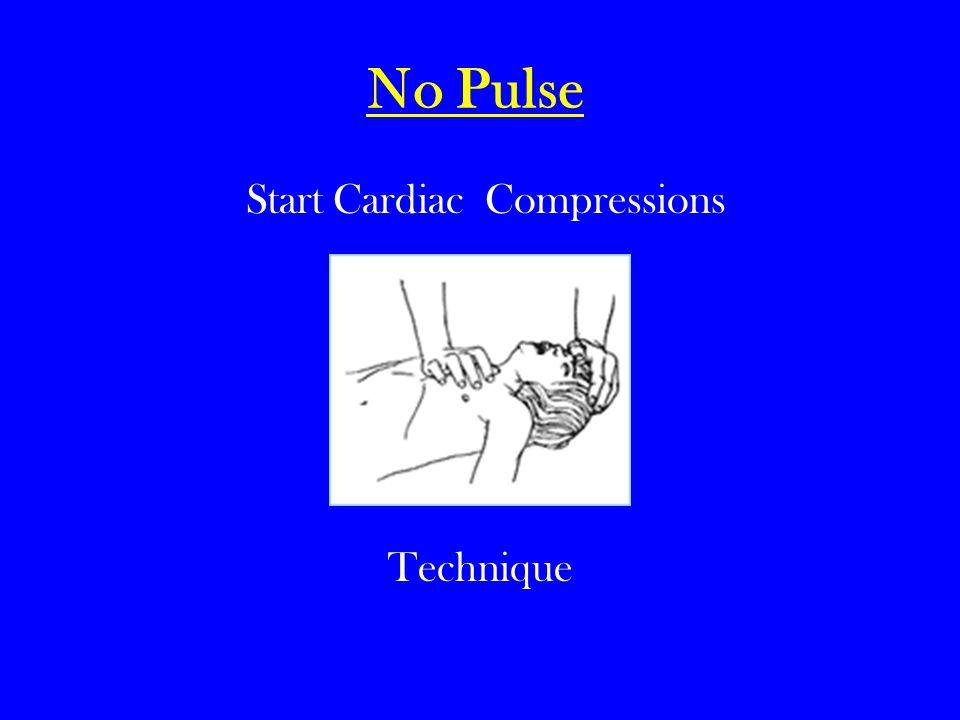 No Pulse Start Cardiac Compressions Technique