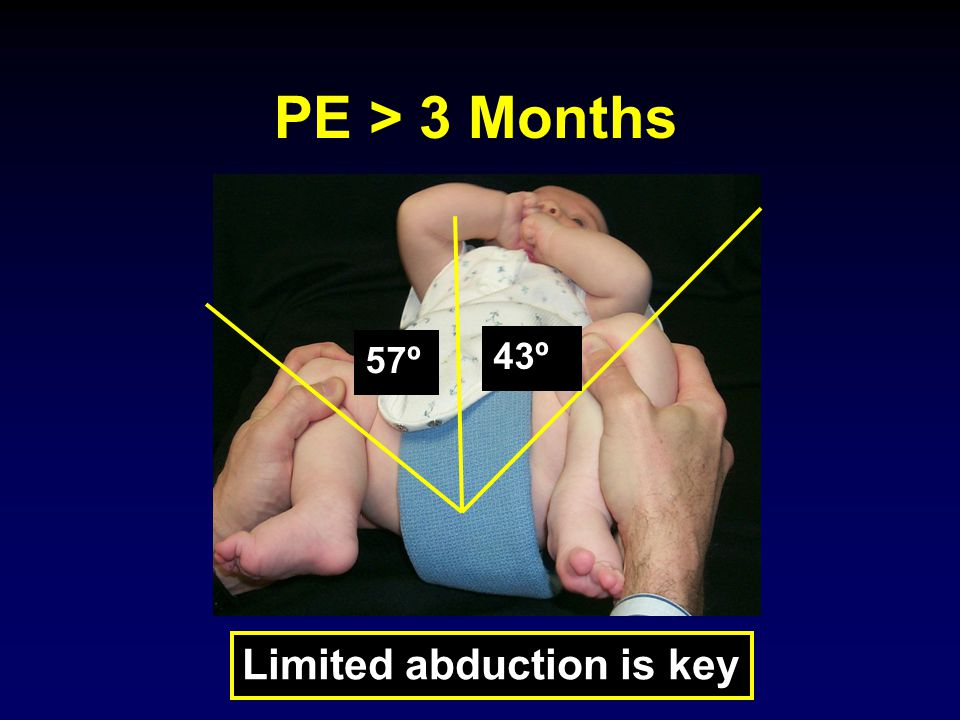 PE > 3 Months 57º 43º Limited abduction is key