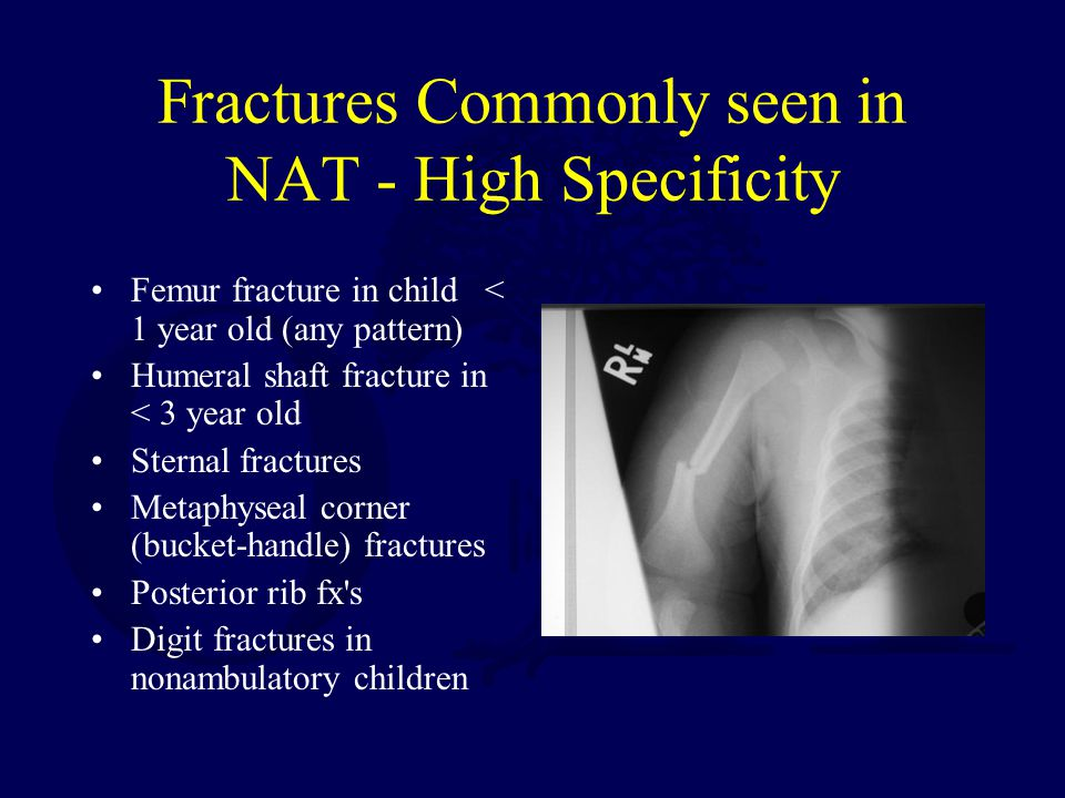 Fractures Commonly seen in NAT - High Specificity Femur fracture in child < 1 year old (any pattern) Humeral shaft fracture in < 3 year old Sternal fractures Metaphyseal corner (bucket-handle) fractures Posterior rib fx s Digit fractures in nonambulatory children