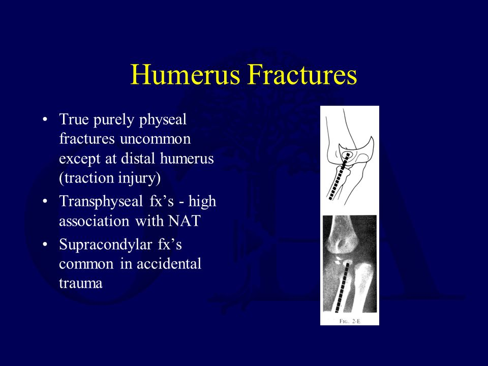 Humerus Fractures True purely physeal fractures uncommon except at distal humerus (traction injury) Transphyseal fx's - high association with NAT Supracondylar fx's common in accidental trauma