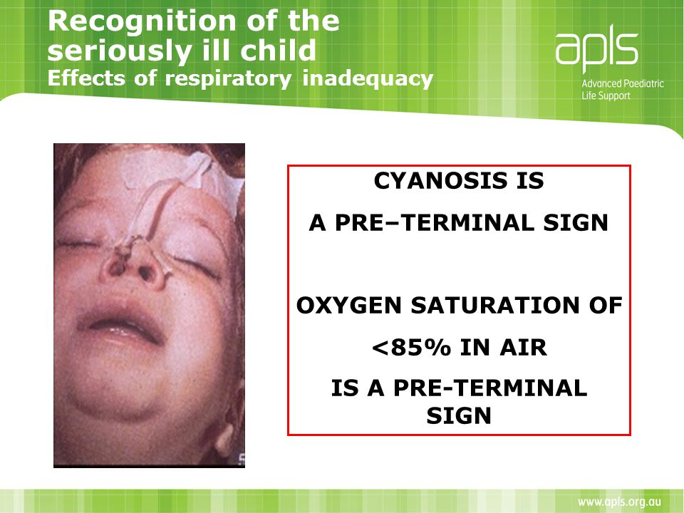 Recognition of the seriously ill child Effects of respiratory inadequacy CYANOSIS IS A PRE–TERMINAL SIGN OXYGEN SATURATION OF <85% IN AIR IS A PRE-TER