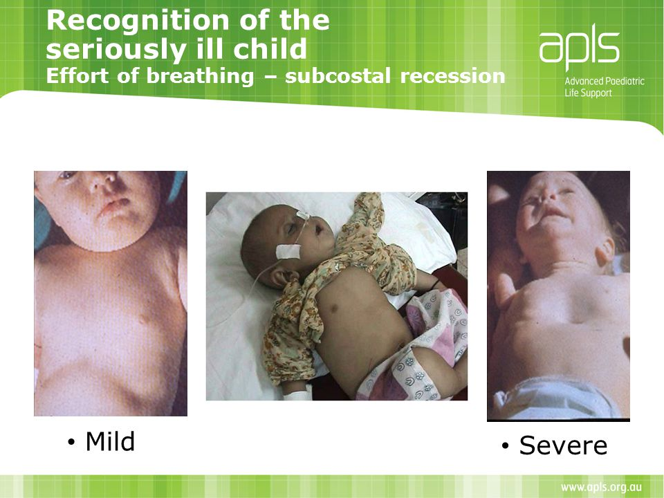 Recognition of the seriously ill child Effort of breathing – subcostal recession Mild Severe