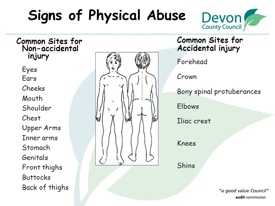 Signs of Physical Abuse Common Sites for Non-accidental injury Eyes Ears Cheeks Mouth Shoulder Chest Upper Arms Inner arms Stomach Genitals Front thig
