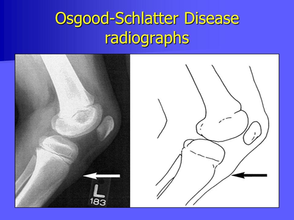 Osgood-Schlatter Disease radiographs