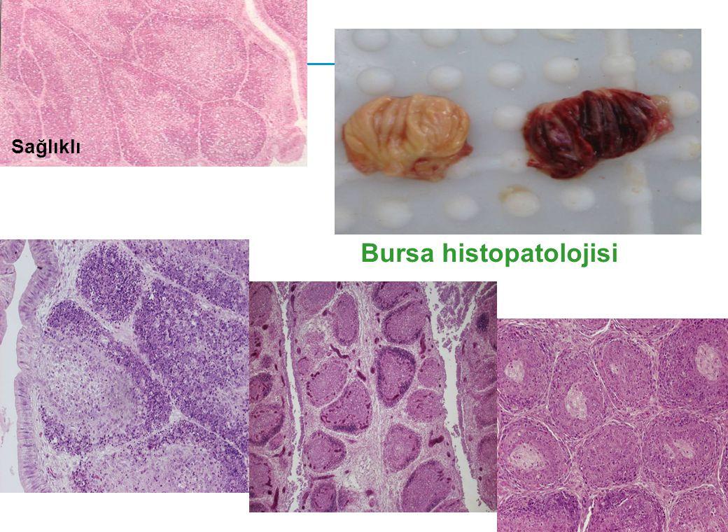 Bursa histopatolojisi Sağlıklı