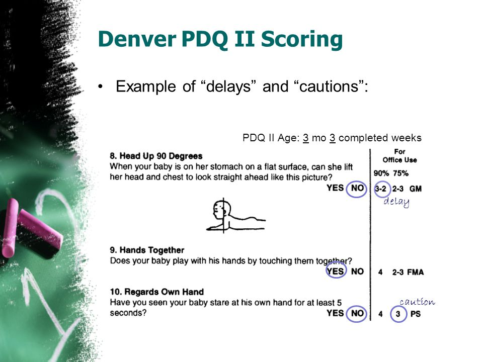 "Denver PDQ II Scoring Example of ""delays"" and ""cautions"": PDQ II Age: 3 mo 3 completed weeks delay caution"